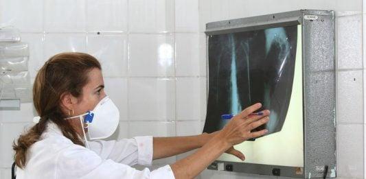 [Tuberculose mata 4.500 pessoas todos os dias no mundo]